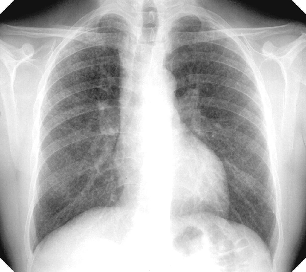 Chest X-ray showing uncomplicated silicosis