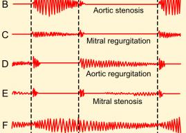 Heart Murmur In Children (Symptoms, Causes and Treatment in Children)