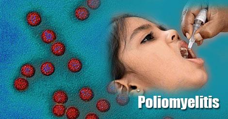 Poliomyelitis Symptoms In Children