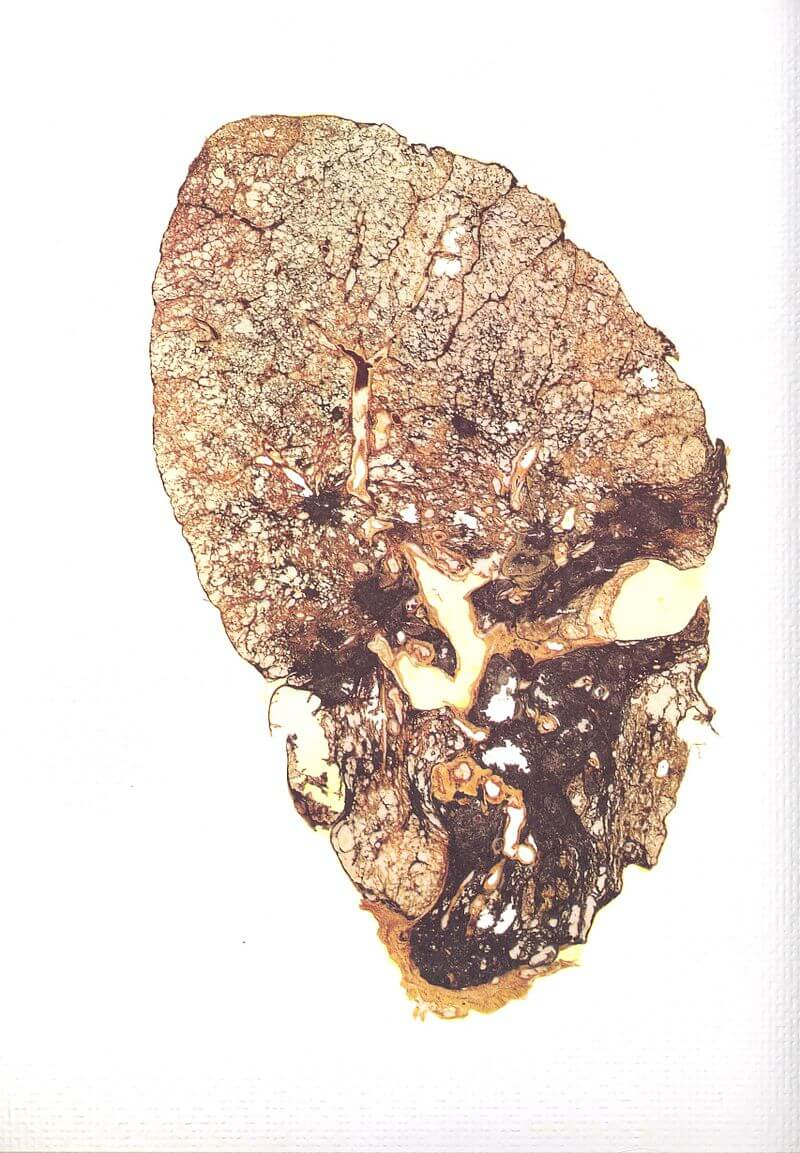 Slice of a lung affected by silicosis
