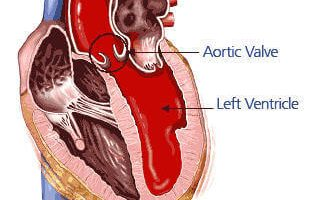 What is Aorta? Aorta Functions and Aortic Diseases