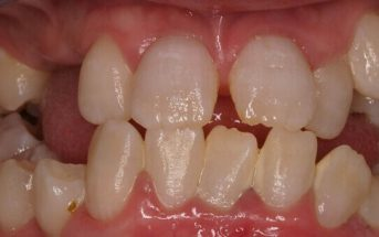 Teeth Diseases and Disorders - (Causes and Treatment)