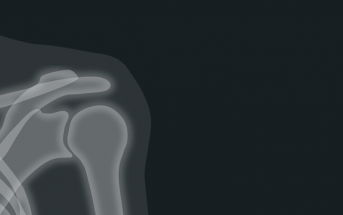 What is The Anatomy Of The Shoulder?