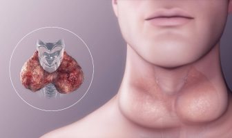 Goiter Causes Symptoms and Types & What are the types of Goiter disease?