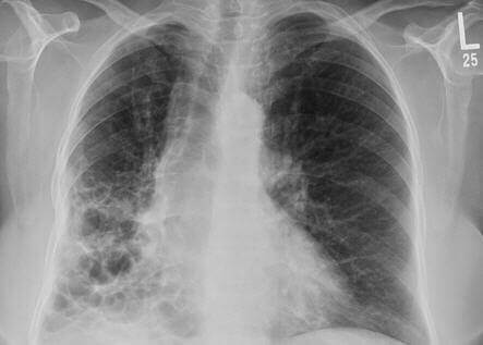What Are The Causes and Symptoms Of Bronchiectasis?