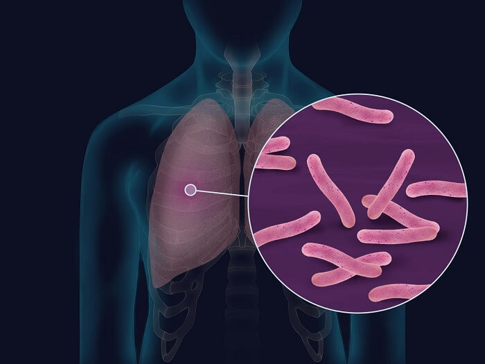 Tuberculosis Causes and Symptoms - Complications of Tuberculosis