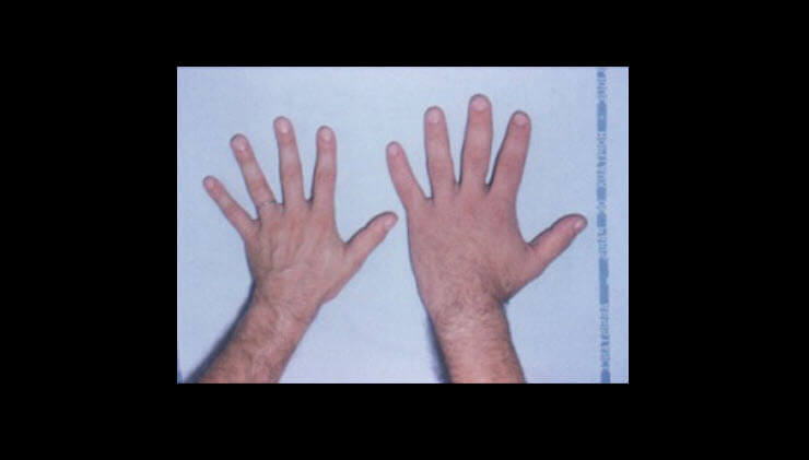 What is Acromegaly? - What are the Symptoms? How is it treated?