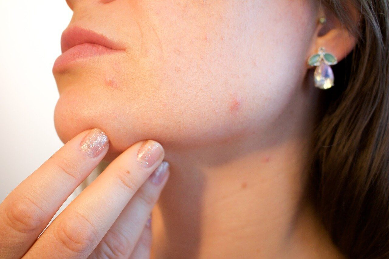 Acne: Causes, Prevention, Treatment and Tips