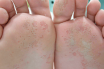 Athlete's Foot Diagnosis and Treatment