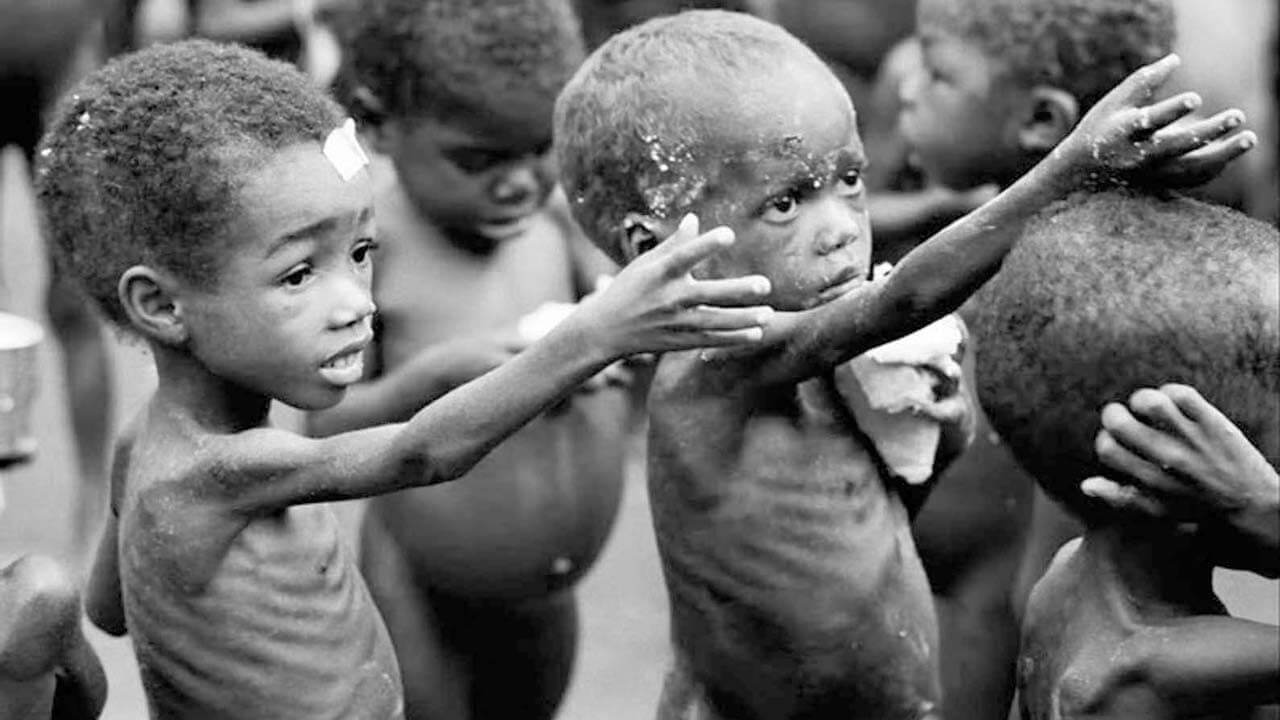 9 Characteristics Of Malnutrition - What is Malnutrition?