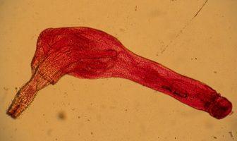 Acanthocephala Classification, Anatomy and Life Cycle