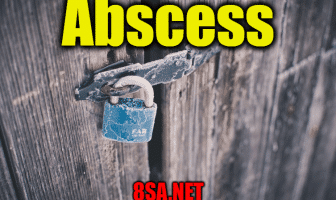 Abscess - Sentence for Abscess - Use Abscess in a Sentence