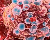 Information About Tumor – What are the characteristics, anatomical structure and types of tumor?