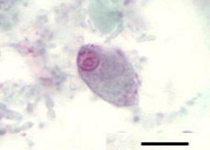 Chilomastix mesnili: Characteristics, Morphology, Biological Cycle, Infection
