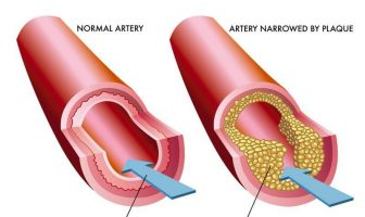 What are the Causes and Symptoms of Arteriosclerosis?